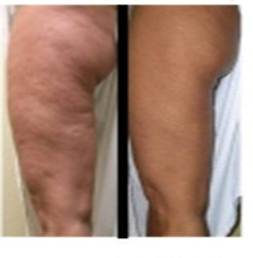 Smooth and tighten the thighs with EndyMed and GPSLipo