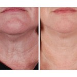EndyMed RF radio frequency used on chin reshaping