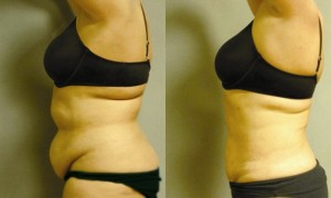 Body sculpting with the laser lipo