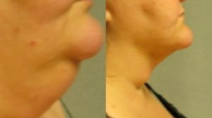Chin expertly sculpted with Osyris Medical laser lipo
