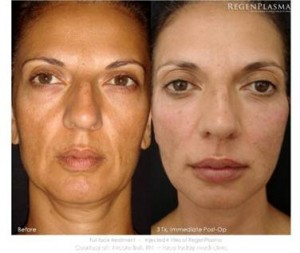 Vampire Facelift for facial lines